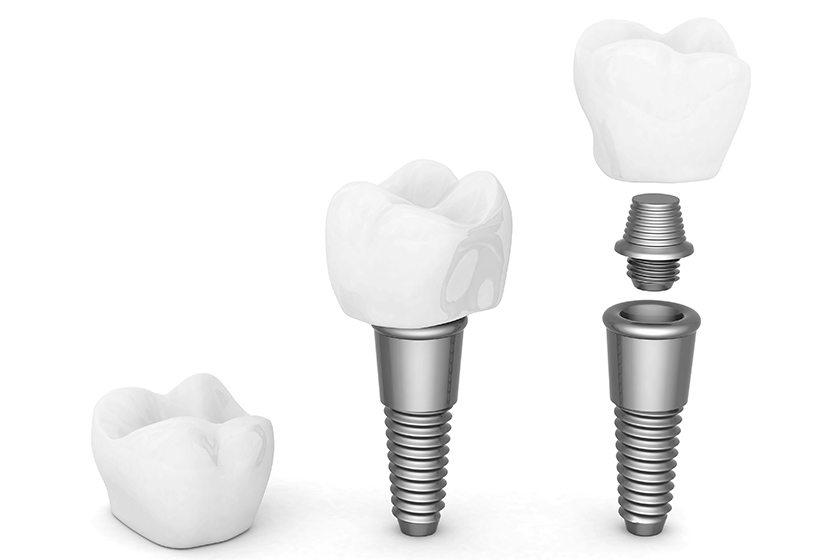 Diş implantı tedavisi