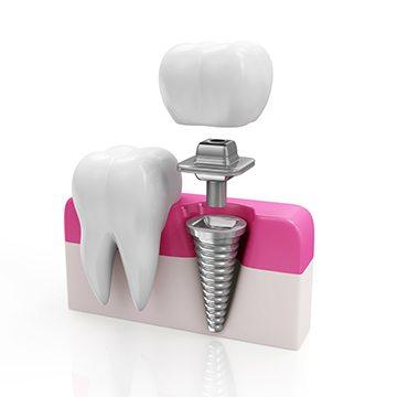 implant nasıl yapılır