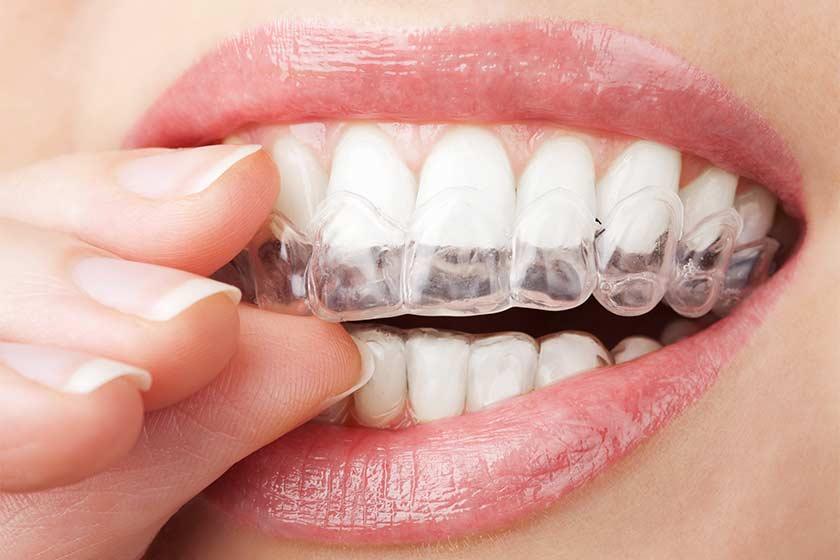 şeffaf braket invisalign ortodonti