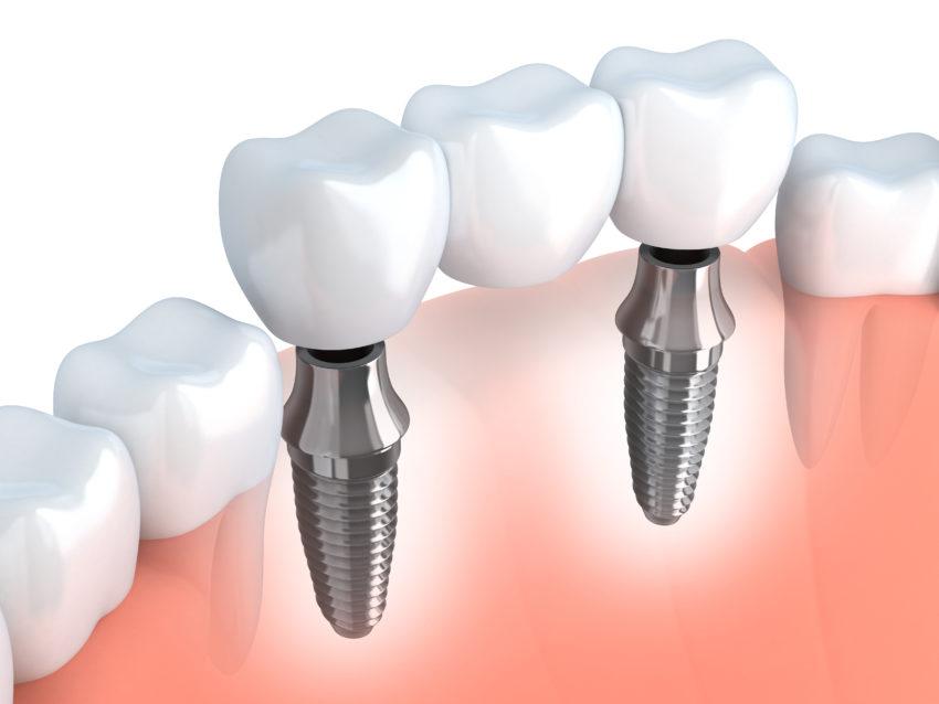 Diş İmplantları Hakkında 4 Şey