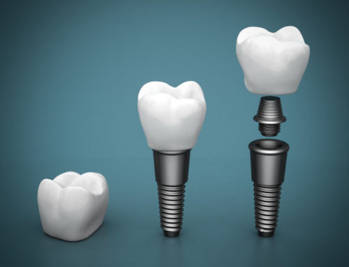 Requirements For Dental Implants