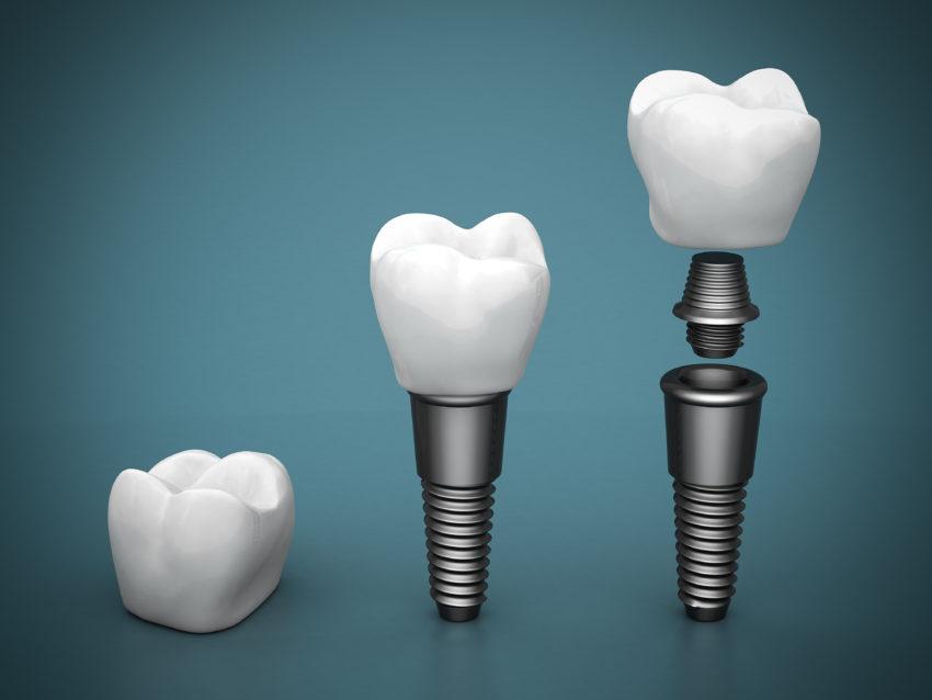 Diş implantlarının uygulanabilmesi için gereken şartlar
