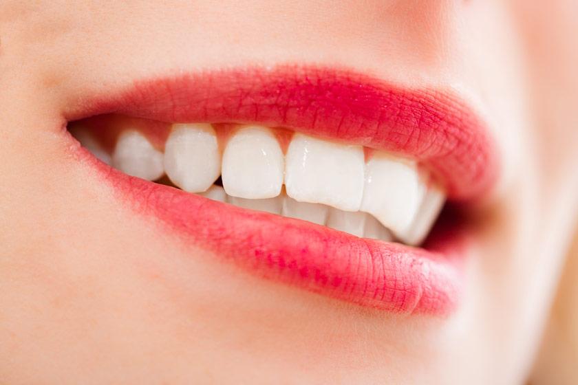 beyaz dişler için çözümler