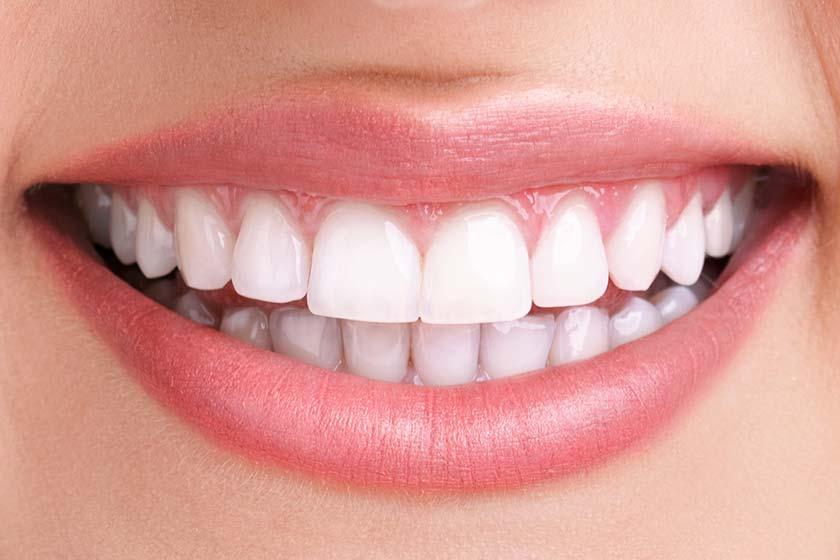 Bleaching - Diş Beyazlatma Gerçekleri