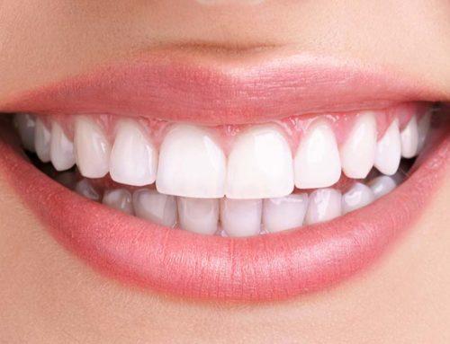 Diş Beyazlatma Hakkında Gerçekler