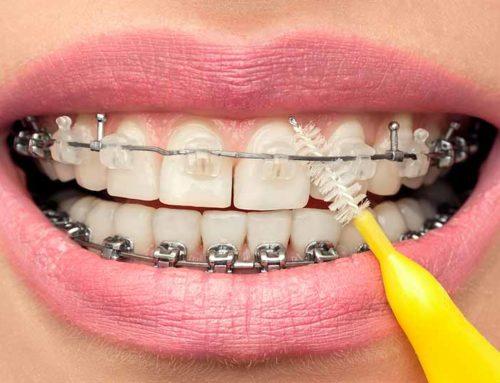 Ortodonti Tedavisinde Dikkat Edilmesi Gerekenler