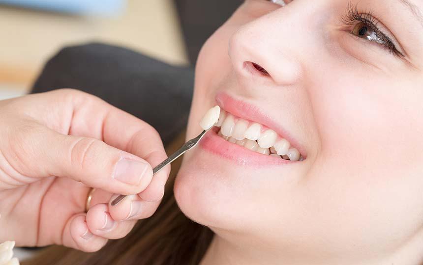 emax diş kaplama